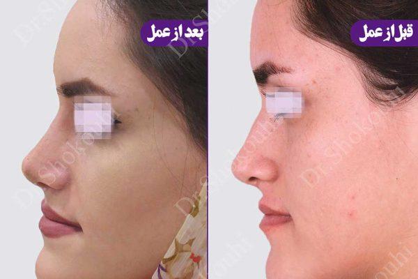 جراحی بینی انحراف دار و استخوانی