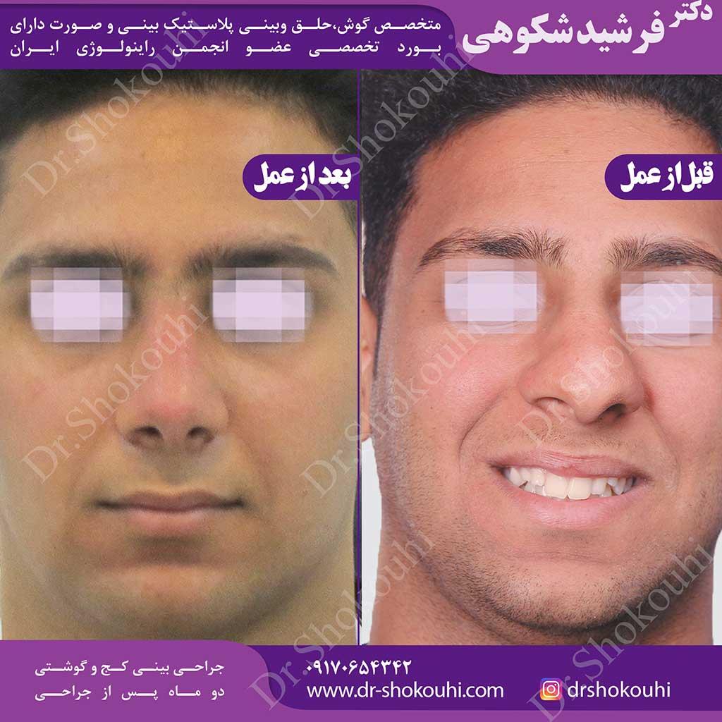 جراحی بینی کج و گوشتی