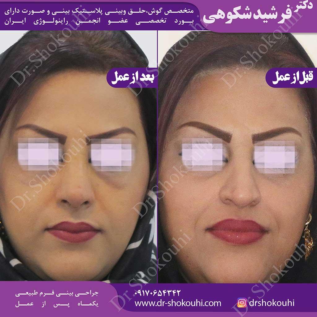 جراحی بینی فرم طبیعی