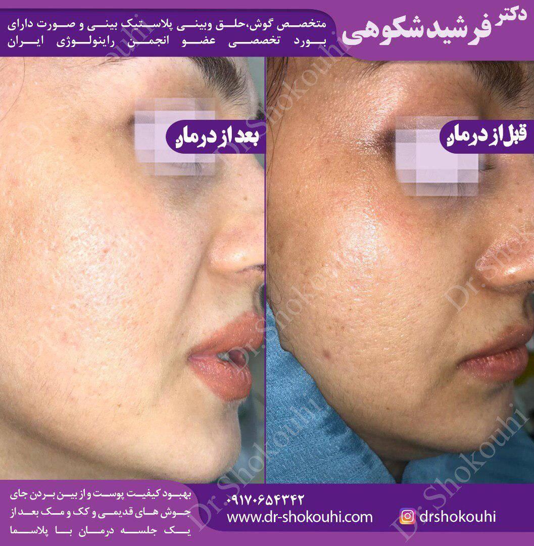جوانسازی صورت و بهبود کیفیت پوست