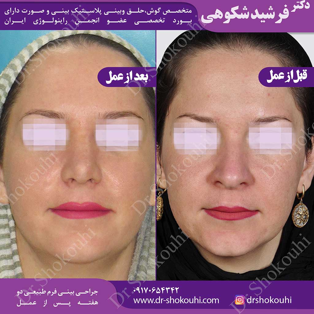 جراحی زیبایی بینی به فرم طبیعی
