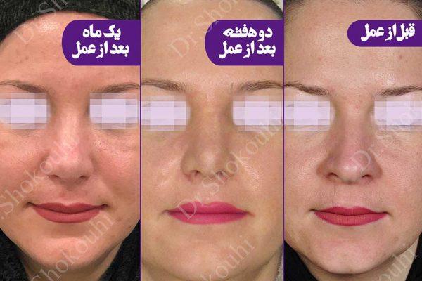 جراحی زیبایی بینی فرم استخوانی
