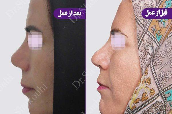 جراحی زیبایی بینی گوشتی