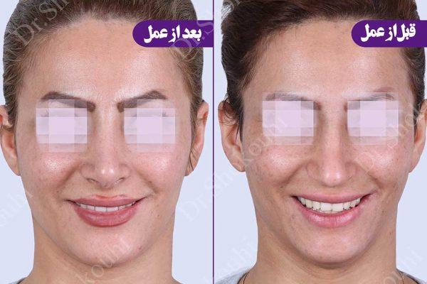 جراحی زیبایی بینی فرم طبیعی