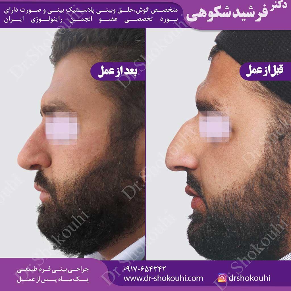 جراحی زیبایی بینی انحراف دار