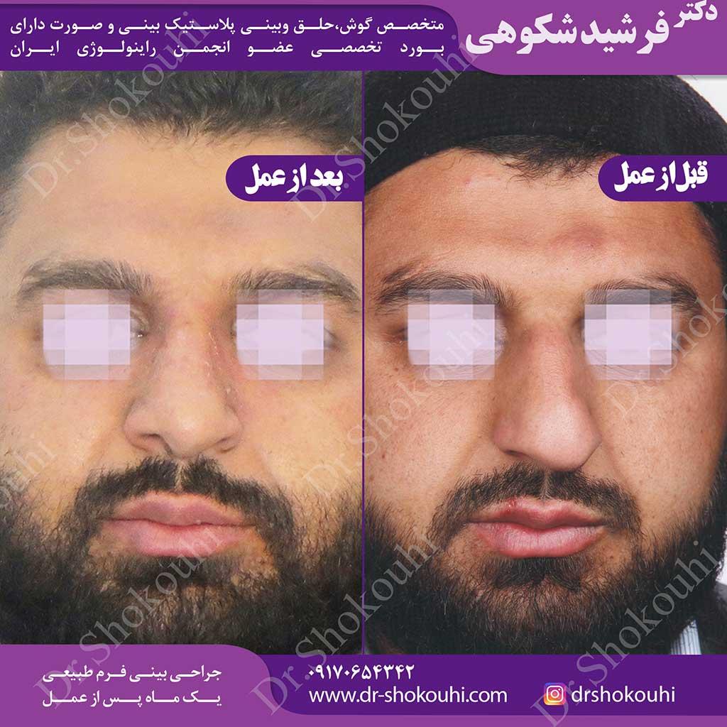 جراحی بینی انحراف دار