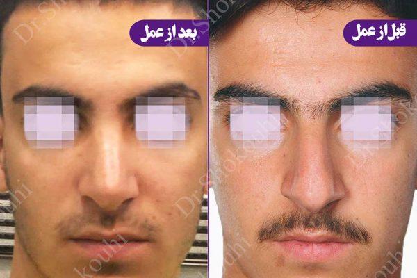 جراحی زیبایی بینی فرم مردانه